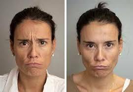 Botox frente antes y después