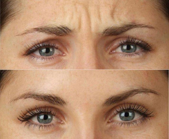 Botox frente y entrecejo